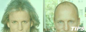 Haargroei terug mogelijk bij kaalheid
